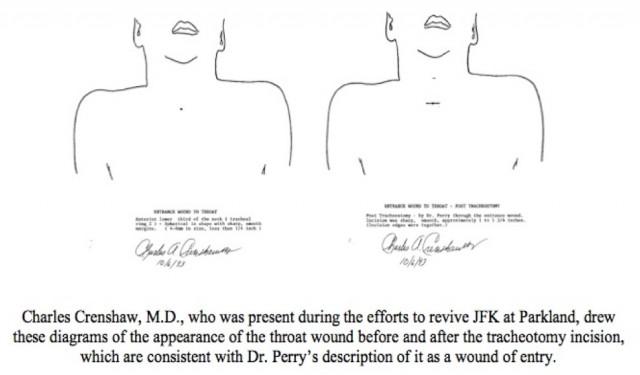 Crenshaw's throat diagrams