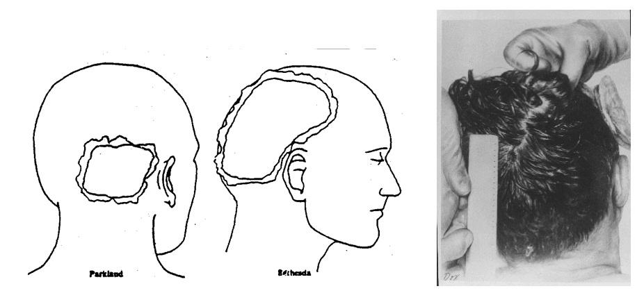 JAMES FETZER: Zapruder Frame 343: The blowout at back of JFK\'s head