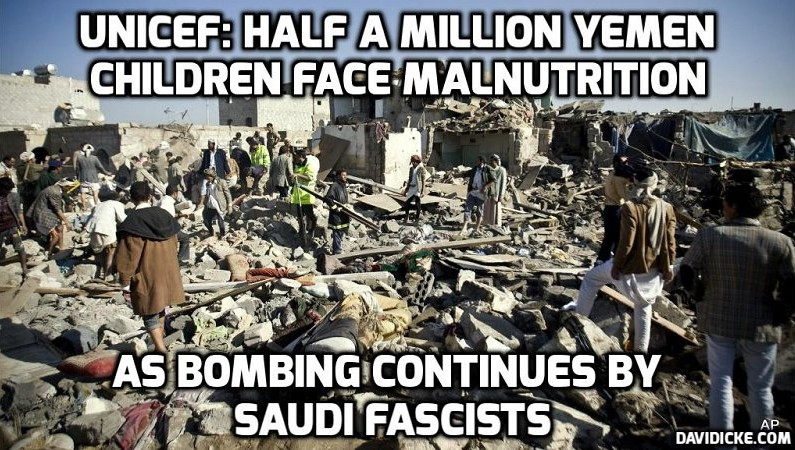 YEMEN – A Modern Day Concentration Camp