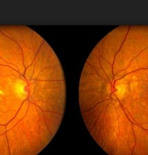 Age-Related Macular Degeneration: Stop the End Game
